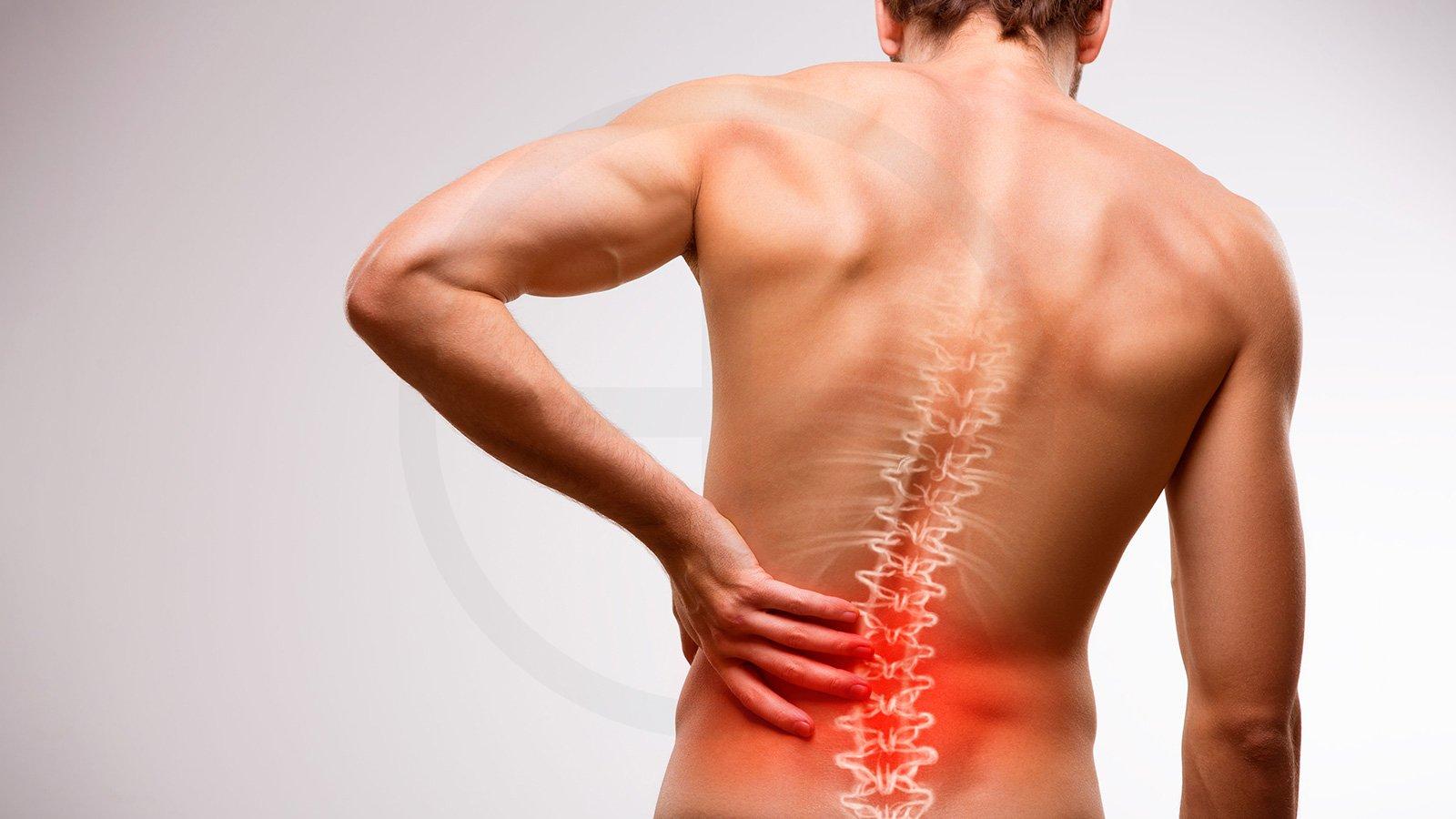 Rückenbeschwerden selber heilen